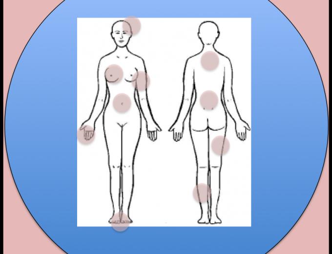 CONVERSACIONES: El tratamiento del dolor en cáncer de mama